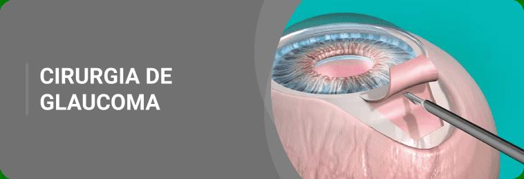 glaucoma cirurgia
