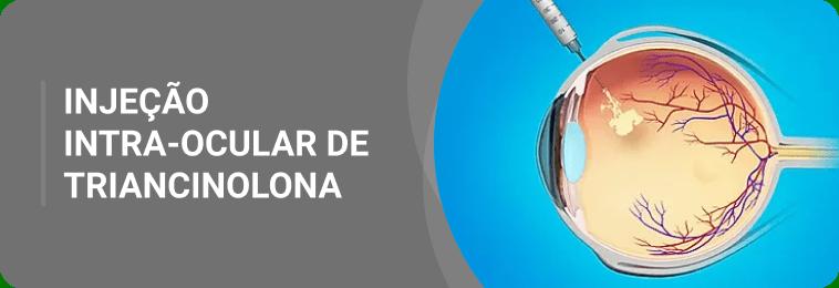 Injeção intra-ocular de triancinolona